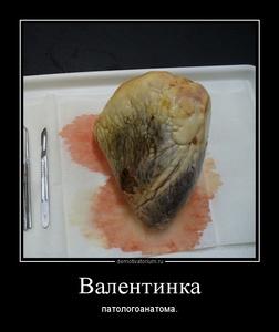 демотиватор Валентинка патологоанатома. - 2014-2-11