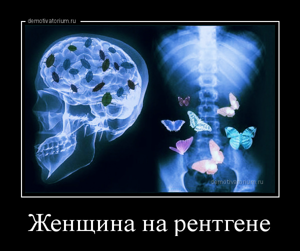 демотиватор Женщина на рентгене  - 2016-5-12