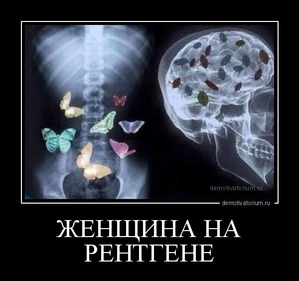 демотиватор ЖЕНЩИНА НА РЕНТГЕНЕ  - 2018-6-24